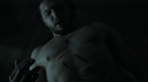 This was harder for me to watch than Oberyn getting head-squished.